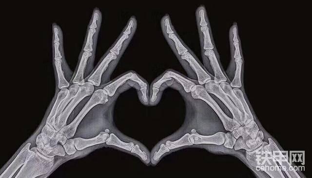 医学影像专业:这波表白一般人确实弄不出来,连拍片都是爱你的形状!!!
